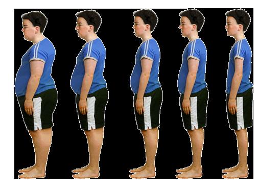 Childhood Obesity in Scotch Plains | Overweight Children